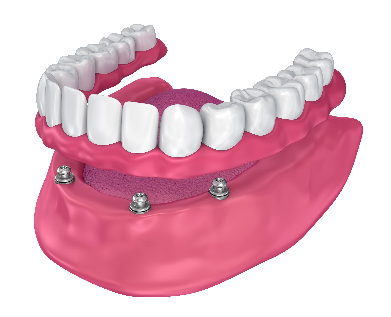 diş protezi antalya