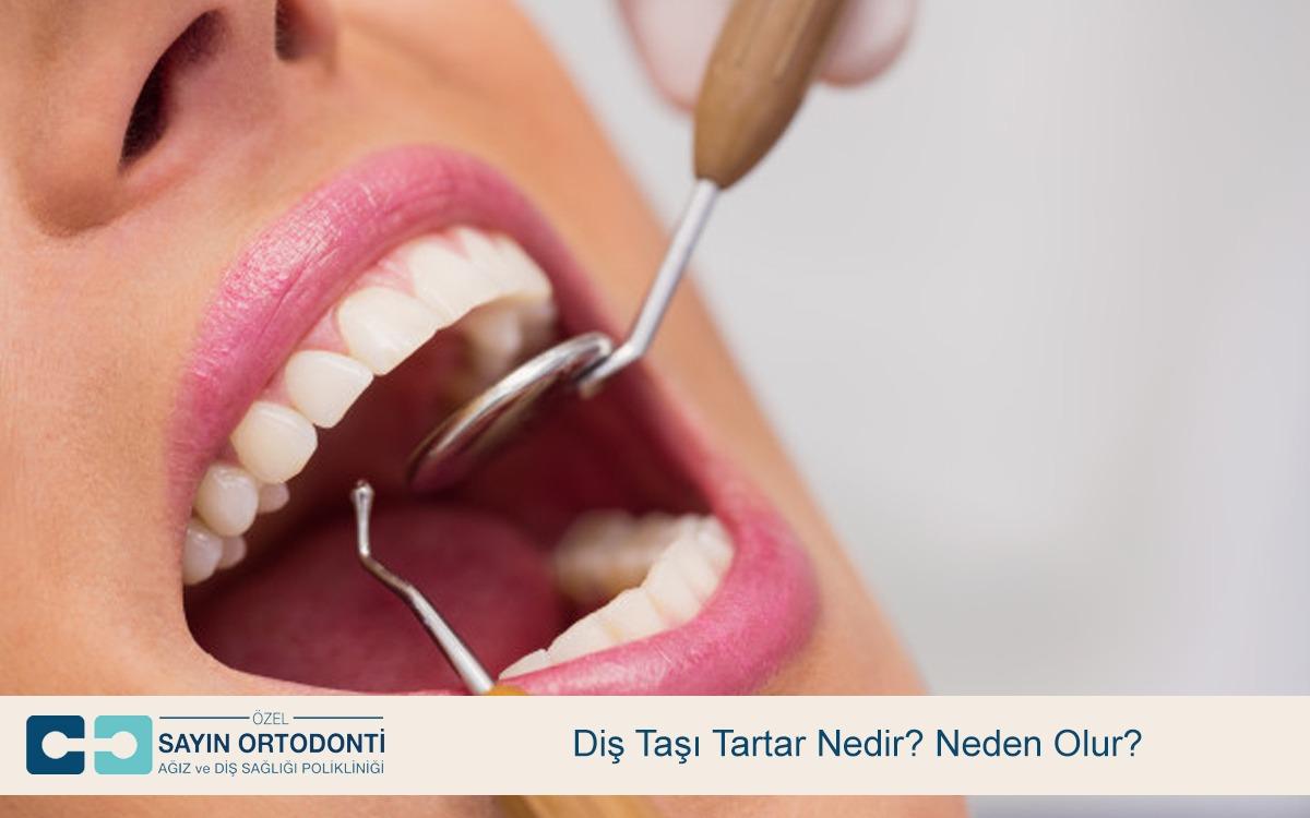 Diş Taşı Tartar Nedir Neden Olur