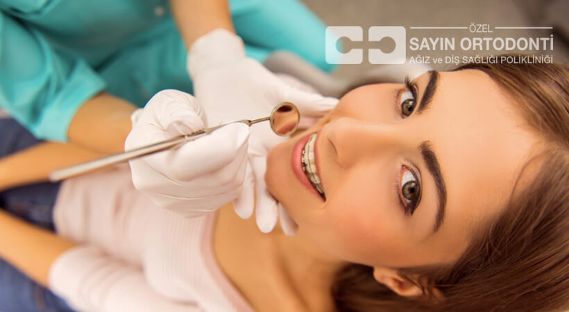 diş teli çeşitleri ve fiyatları