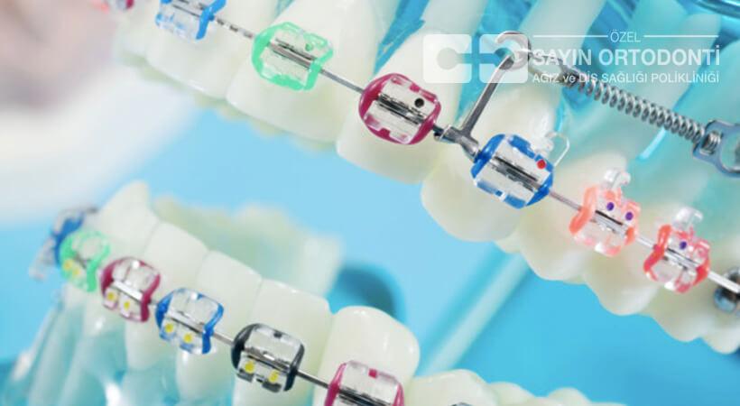 2019 diş teli güncel fiyatları