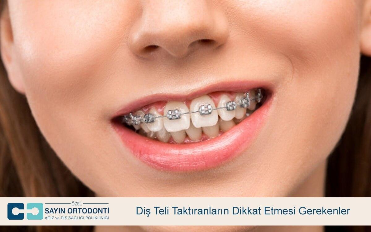 Diş Teli Taktıranların Dikkat Etmesi Gerekenler