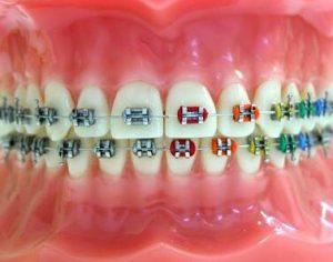 tel tedavisi ve diş teli çeşitleri