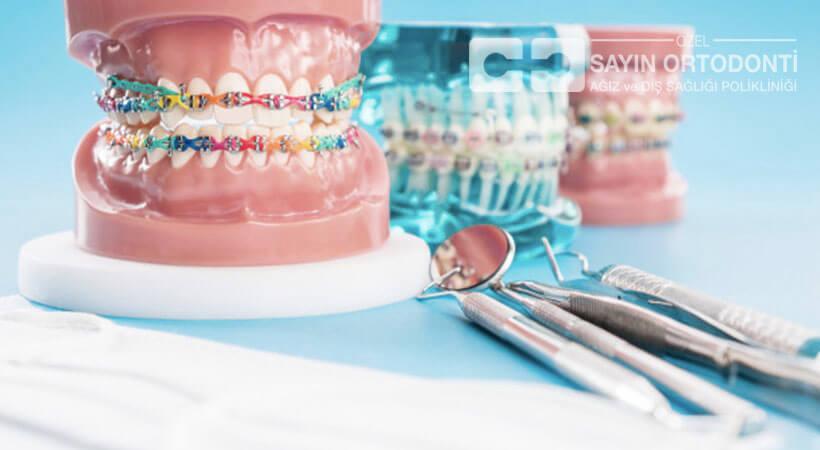 diş teli tedavisi ücreti