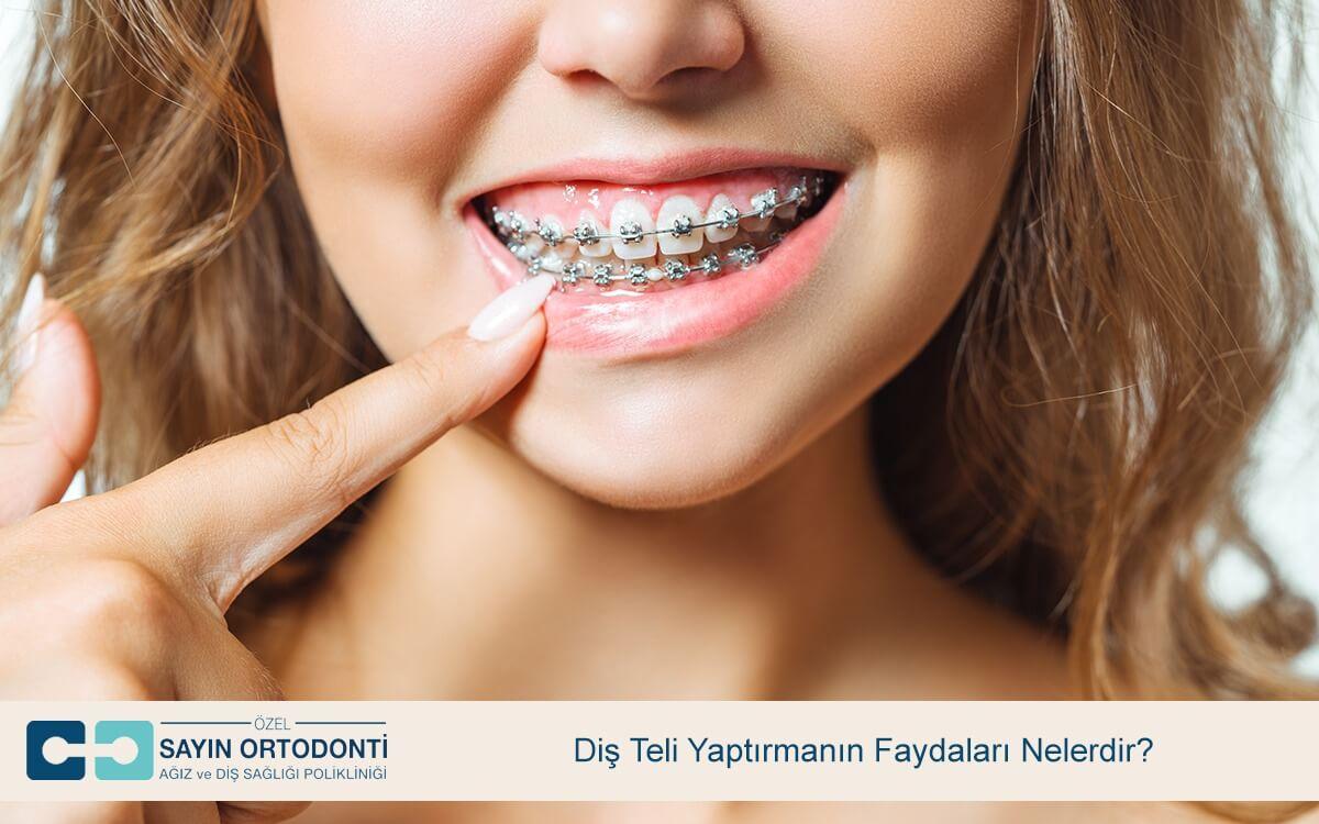 Diş Teli Yaptırmanın Faydaları Nelerdir?
