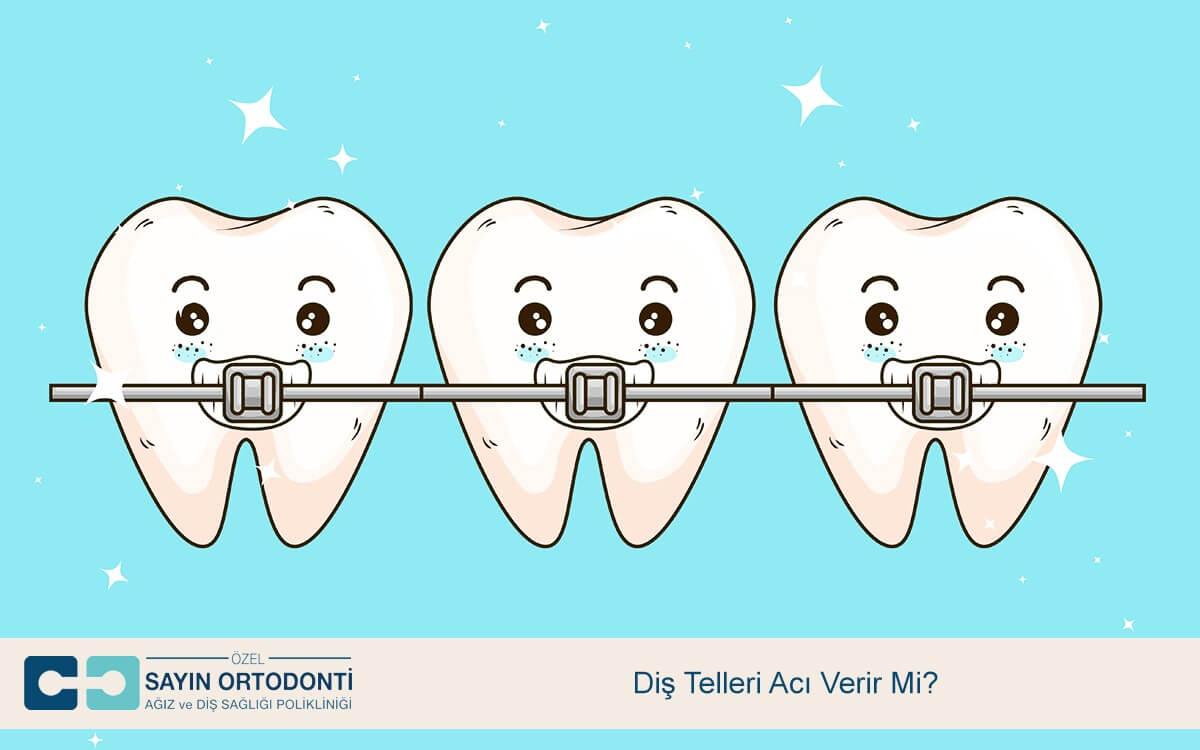 Diş Telleri Acı Verir Mi?