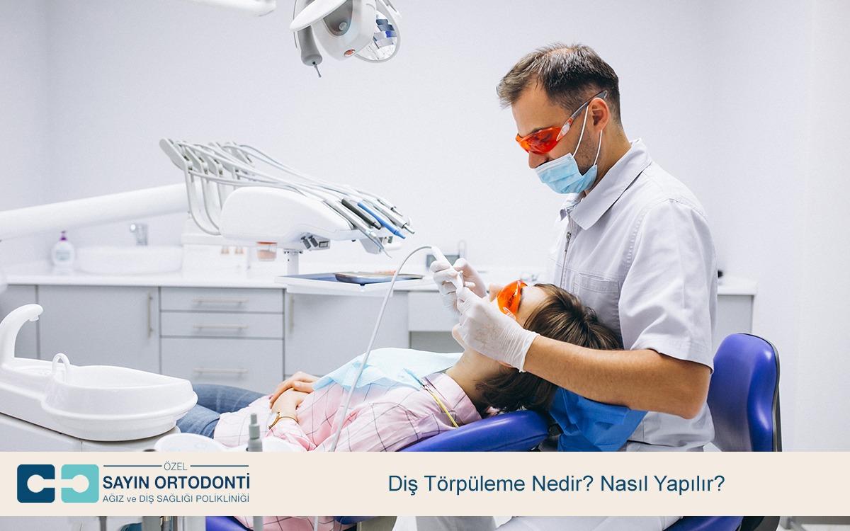 Diş Törpüleme Nedir Nasıl Yapılır