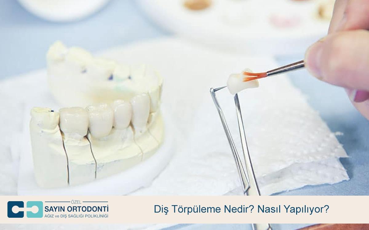 Diş Törpüleme Nedir Nasıl Yapılıyor