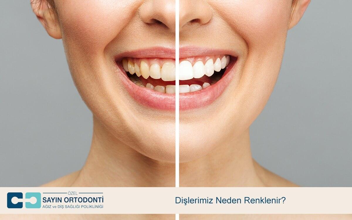 Dişlerimiz Neden Renklenir?