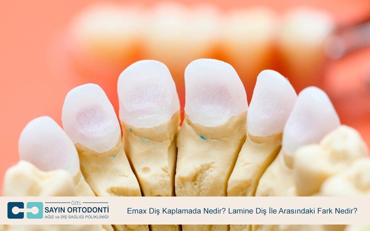 Emax Diş Kaplamada Nedir? Lamine Diş İle Arasındaki Fark Nedir?