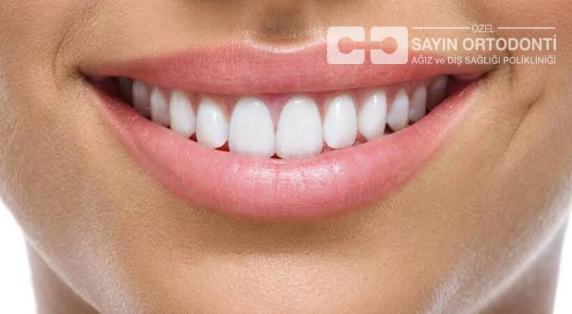 estetik uygulamaları ön dişler için