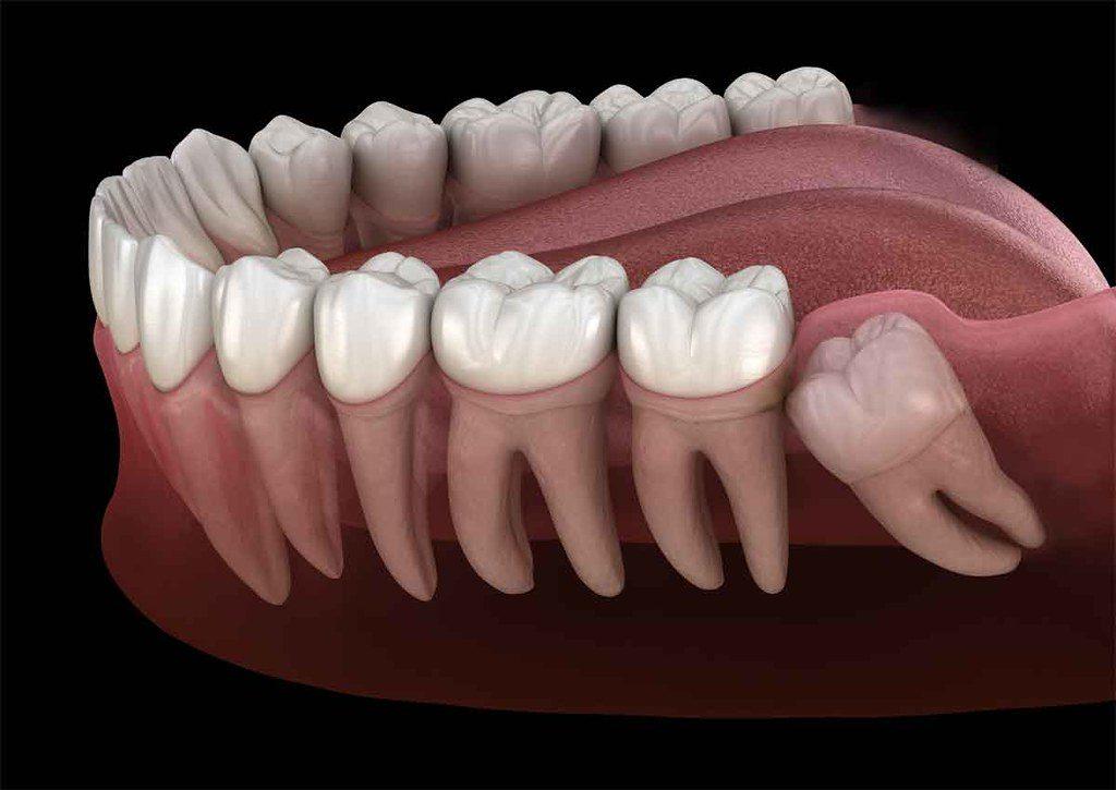 gömülü diş tedavisi antalya