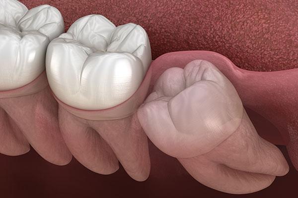 gömülü dişlerin tedavisi