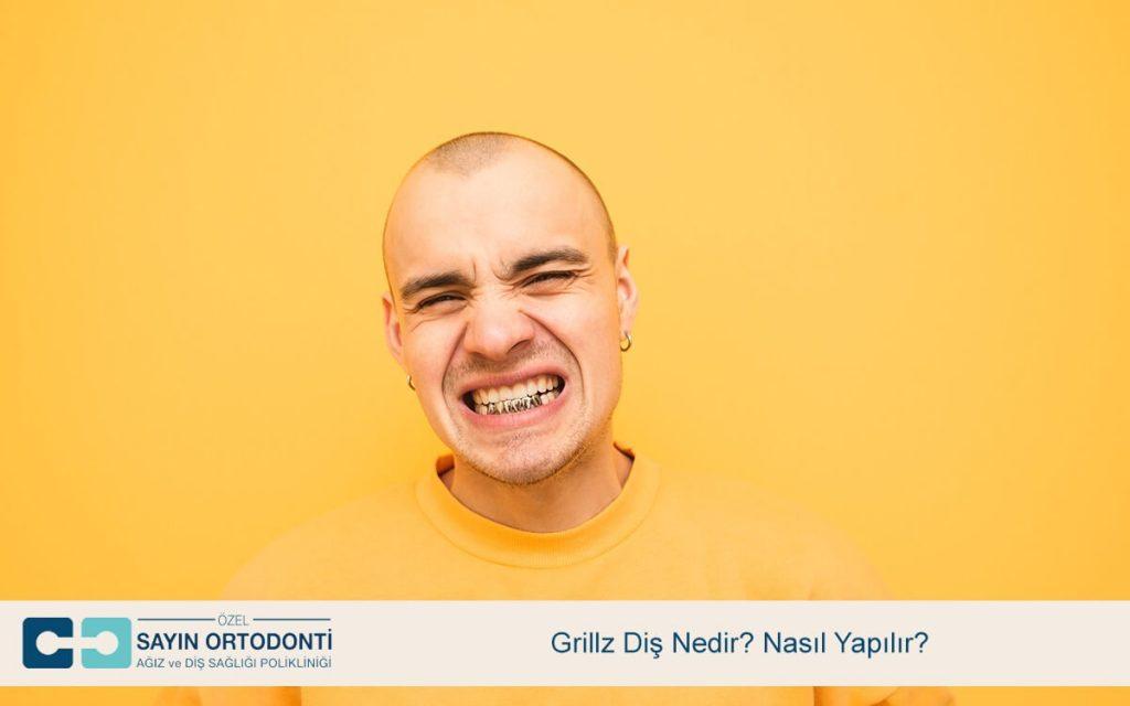 Grillz Diş Nedir? Nasıl Yapılır?