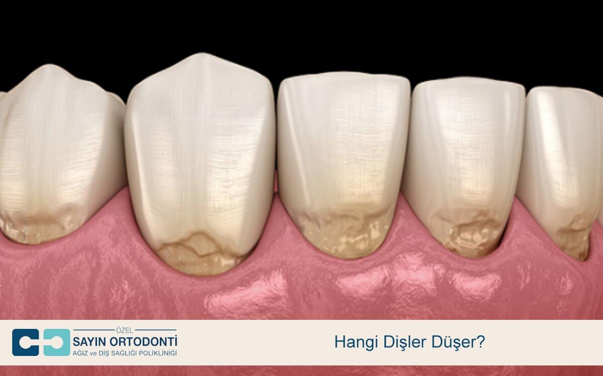 Hangi Dişler Düşer
