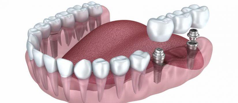 implant diş tedavisi nasıl yapılır