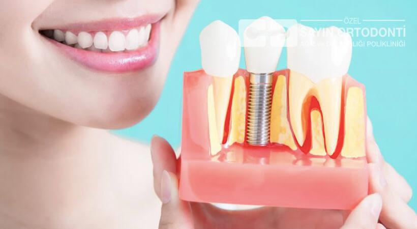 implant diş ücretleri