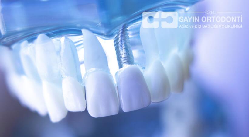 implant diş fiyatları hakkında fiyat bilgisi