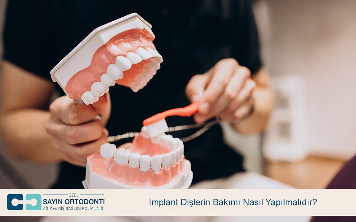 İmplant Dişlerin Bakımı Nasıl Yapılmalıdır?