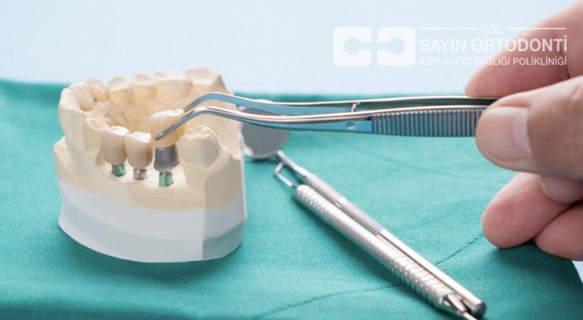 implant fiyatları 2019 ücretleri