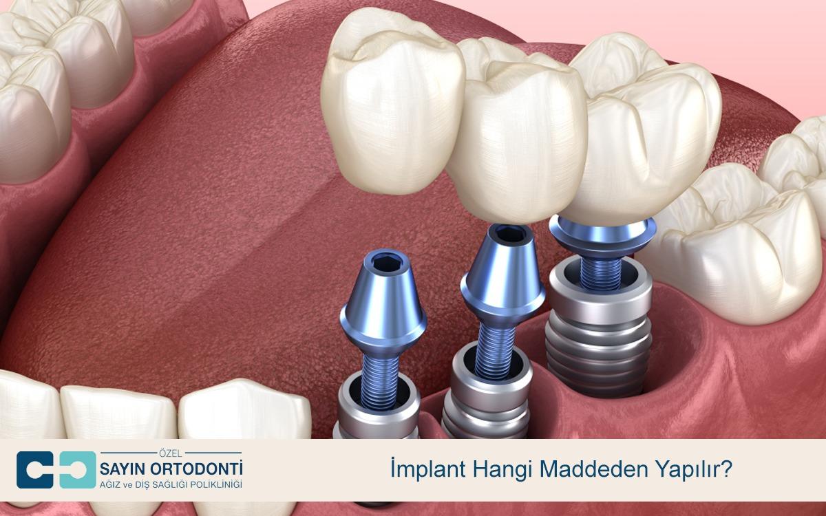 implant hangi maddeden yapılır