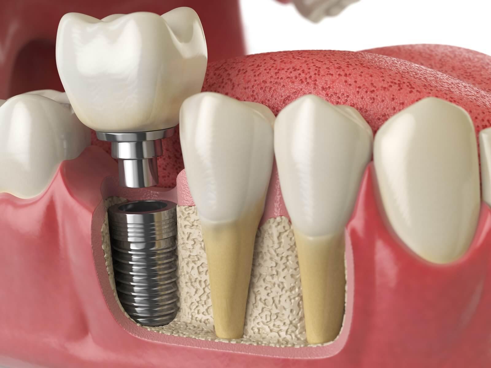 implant hizmet antalya
