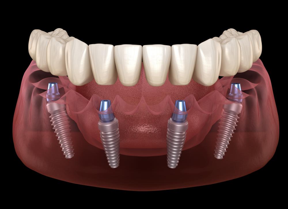 implant üstü hareketli protez