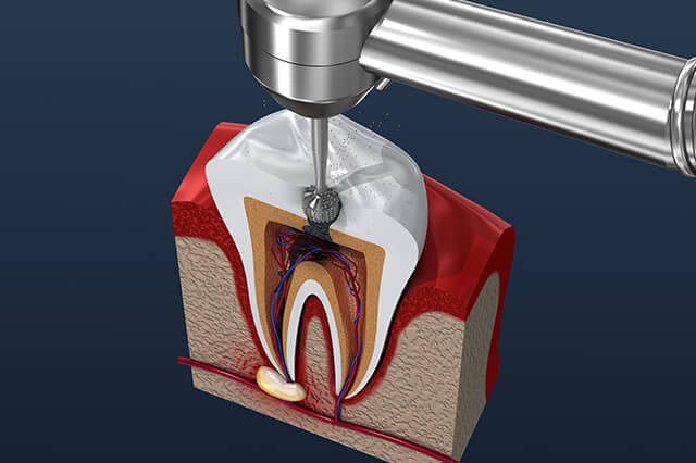kanal diş tedavisi