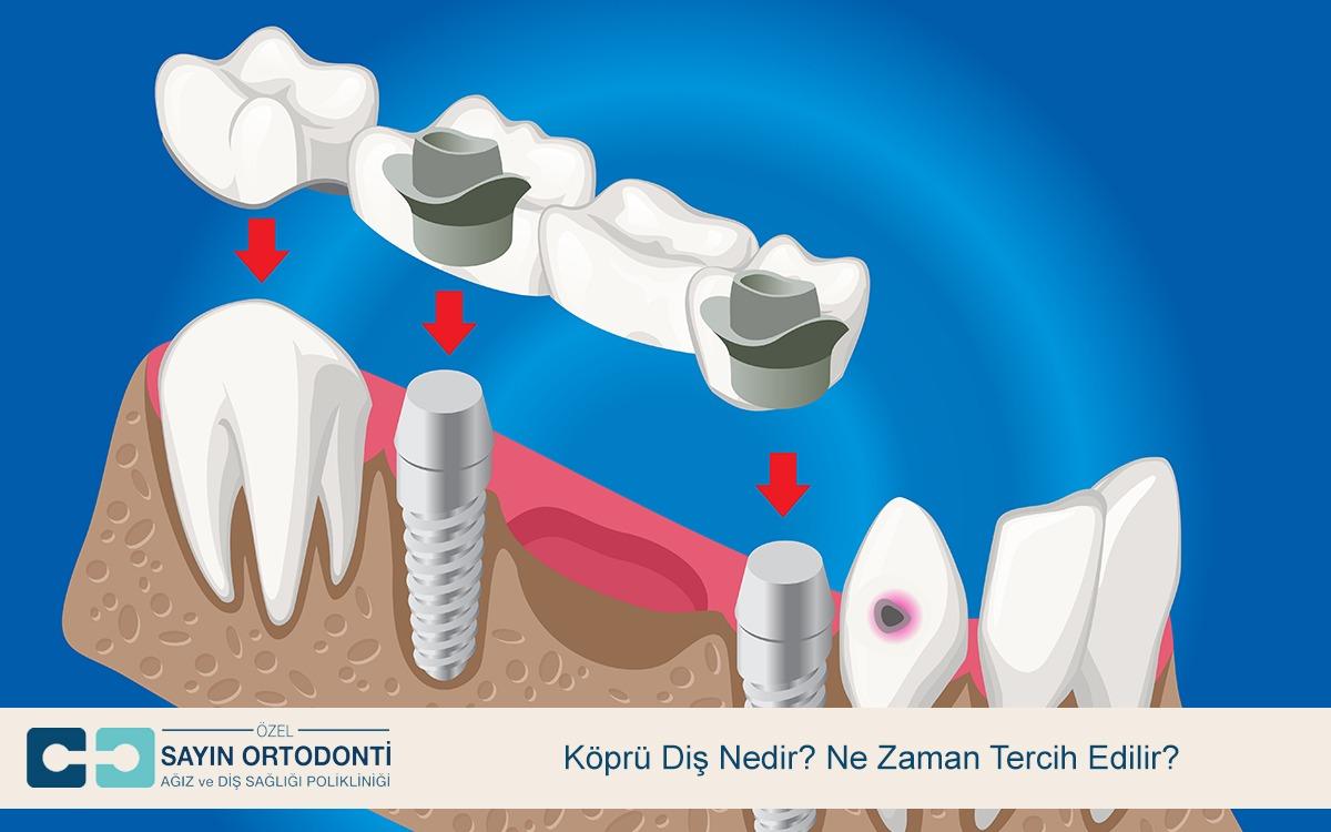 Köprü Diş Nedir Ne Zaman Tercih Edilir