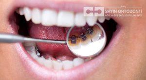 lingual diş telleri
