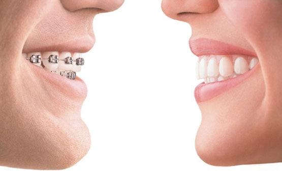antalya ortodonti uzmanları