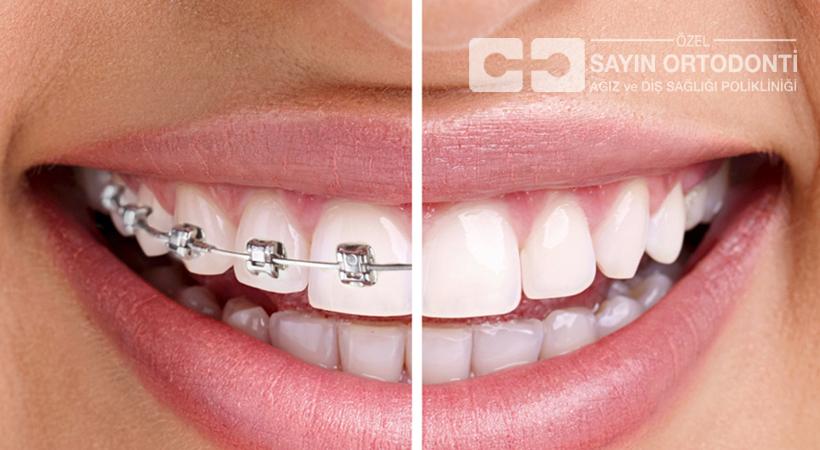 Neden Ortodontik Tedavi