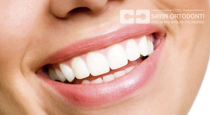 ön dişler için estetik tedaviler