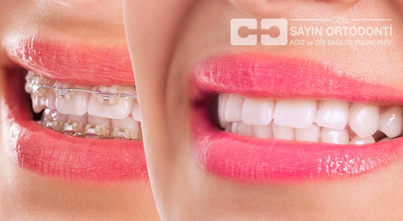 Ortodonti Tedavisi Kimlere Yapılır?