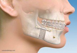 Ortognatik Cerrahi