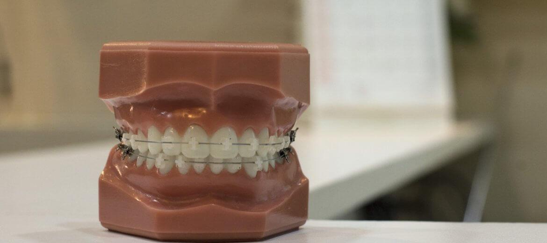 Antalya Diş Ortodonti