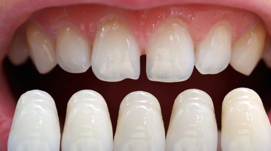 porselen diş nasıl takılır