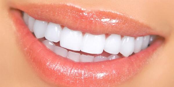 porselen diş ne kadar