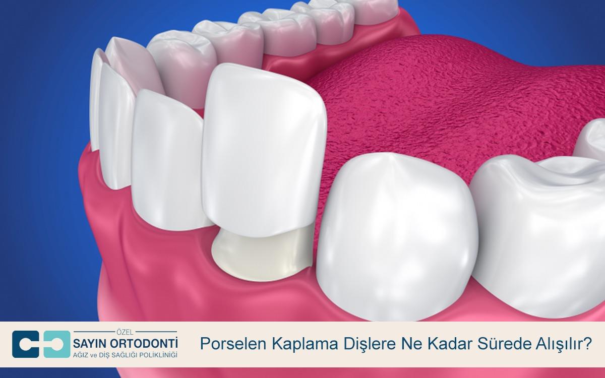 Porselen Kaplama Dişlere Ne Kadar Sürede Alışılır?