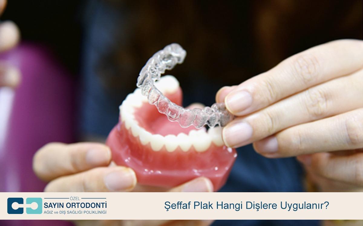 Şeffaf Plak Hangi Dişlere Uygulanır
