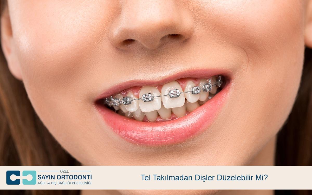 Tel Takılmadan Dişler Düzelebilir Mi