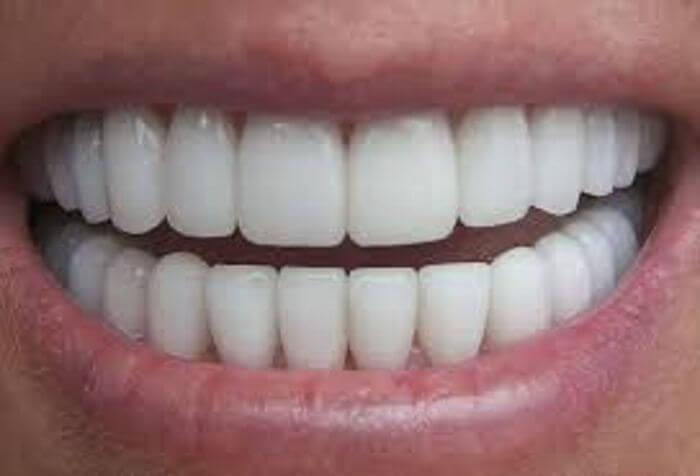 zirkonyum diş alerji yapar mı